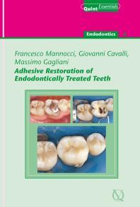 Ingles Endodontics Ebook