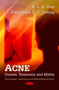 Acne: Causes, Treatment and Myths